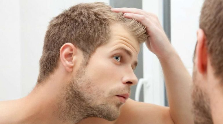 Think Hard Before Using Medicine For Hair Loss