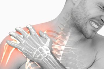 Frozen Shoulder Syndrome A Chiropractic Approach
